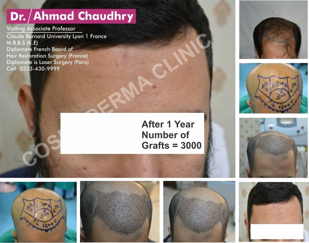 Fue hair transplant results Pakistan