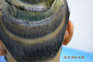 FUT Hair restoration Pakistan